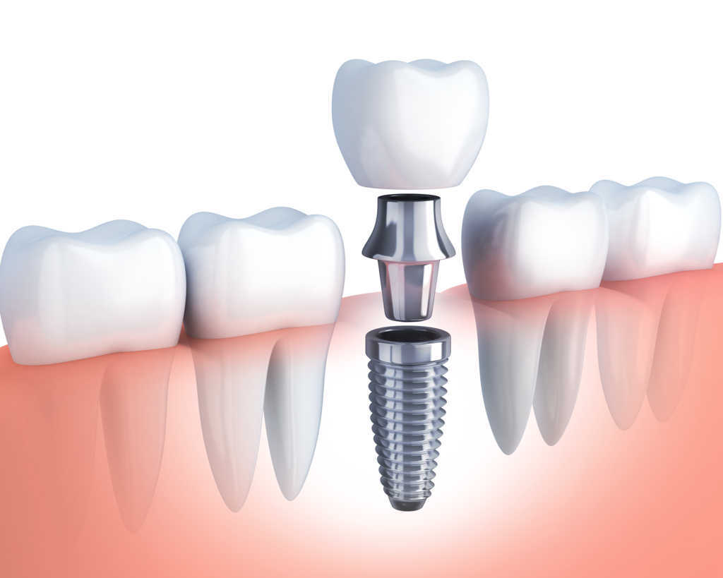 Últimas novedades en implantes dentales