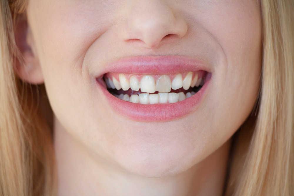 Las principales causas de los dientes oscuros