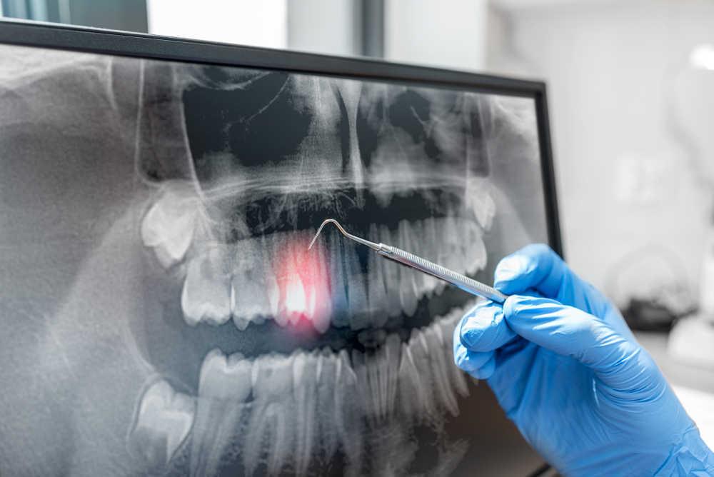 Todo lo que debes saber sobre la radiología dental